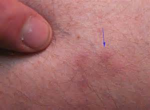 pics of gentle hearted herpes picture 14