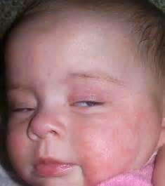 hiv skin rash pictures picture 7