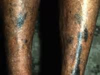bleomycin skin discoloration picture 3