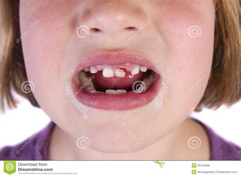 baby teeth losing picture 7