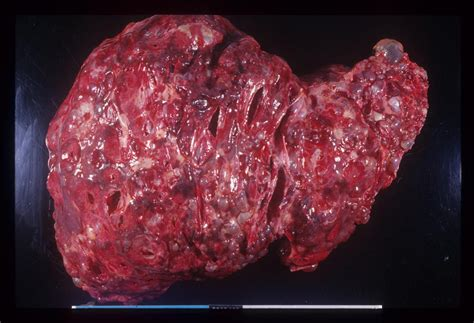 cyst on liver or spleen picture 5