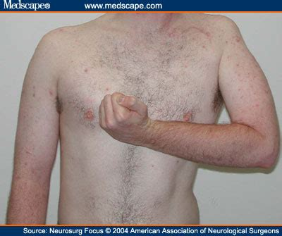 deltoid muscle paralysis picture 2