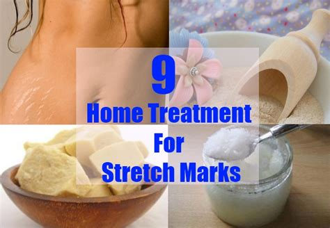 how to treat stretch marks picture 10