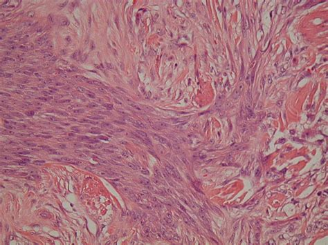 infiltrative skin disorders picture 7