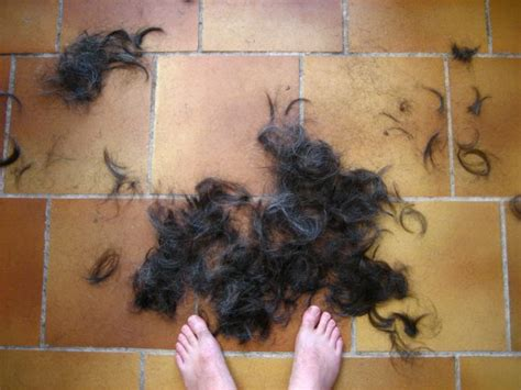 5ar hair loss picture 14