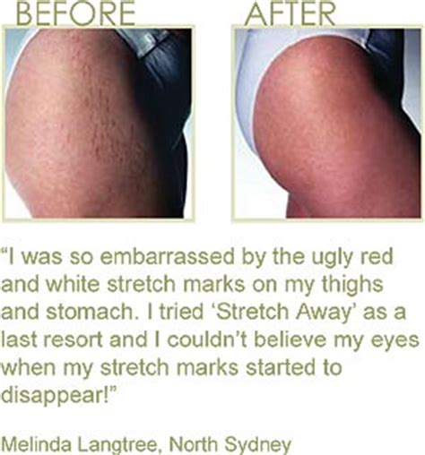 stretch marks will go away the stronger you picture 4