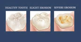 dental erosion & h whitening picture 17