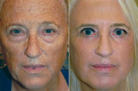 what is strongist face laser treatment in 2014 picture 4