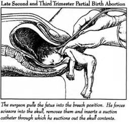how effective is gynaecosid to abort a two picture 6