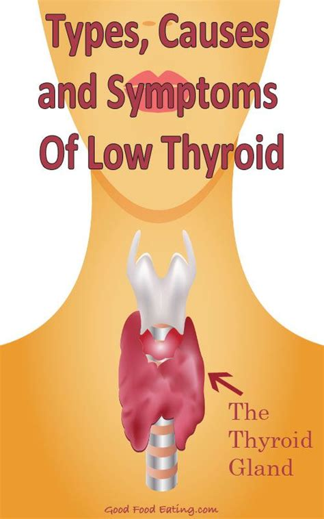 causes for low thyroid picture 3