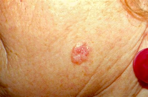 treating advanced cases of basal cell skin cancer picture 12