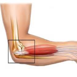 arm and muscle pain picture 15