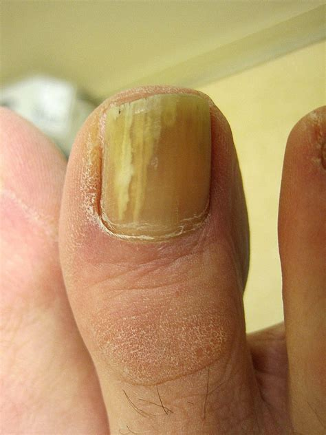 i smoke and have yellow toe nails what picture 8