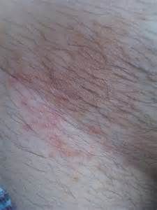 what does yeast infection look like picture 11