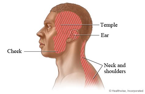 neck pain radiating to ear webmd picture 3