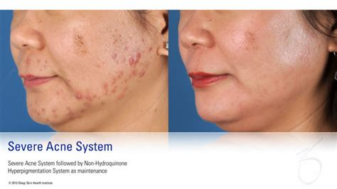 acne rosacea picture 7
