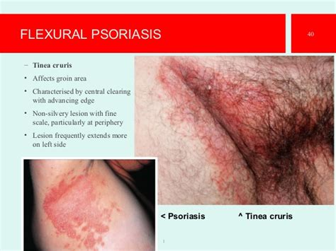 dry skin around vaginal area picture 7
