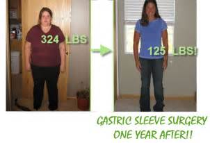 gastrointestinal surgery for weight loss picture 2
