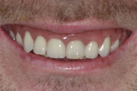 all teeth picture 17