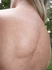 lump on back of neck due to weight picture 8