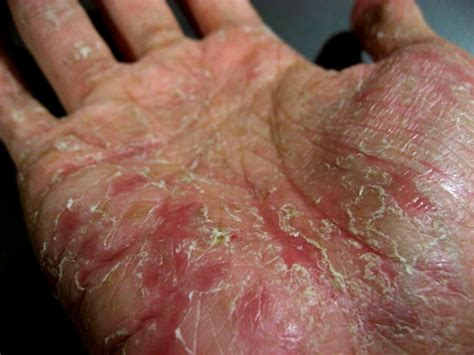 huge skin blisters on hand photos picture 7