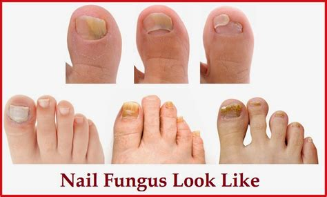 fungus in nail picture 14