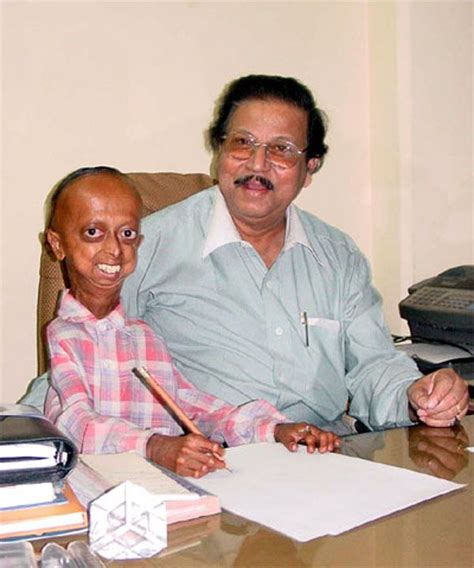 accelerated aging progeria syndrome picture 3