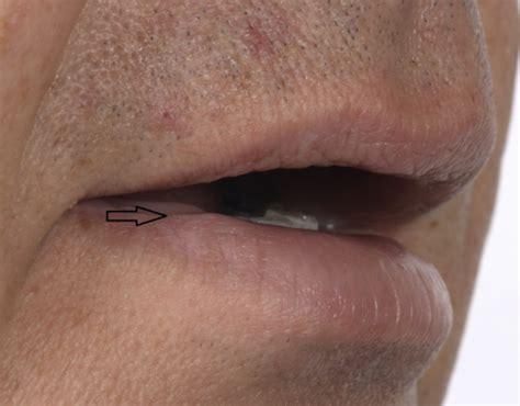 artery in lip picture 14