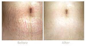 before and after burning stretch marks picture 7