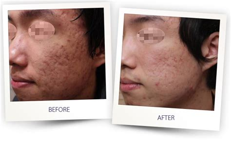 delaware newark acne and scar treatment md picture 2