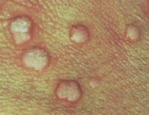 skin rashes warts picture 14