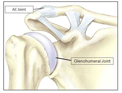 ac joint surgery picture 6