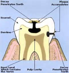 tooth ache relief picture 1