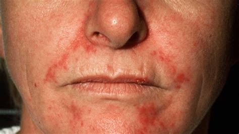 acne caused by shaving picture 9