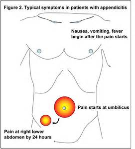 symtoms of a gall bladder attack picture 11