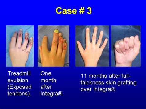 artificial skin integra picture 2