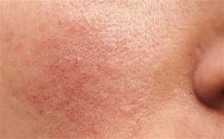mirvaso gel for acne picture 14