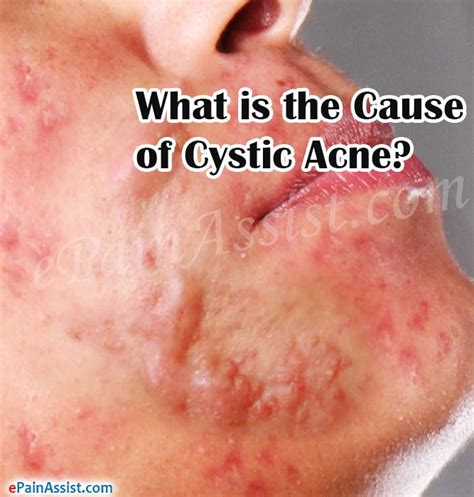causes of cystic acne picture 5
