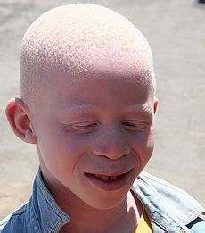 albinos commonly contract skin cancer. what seems to picture 14