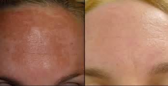 mylocort cream skin brightener picture 7