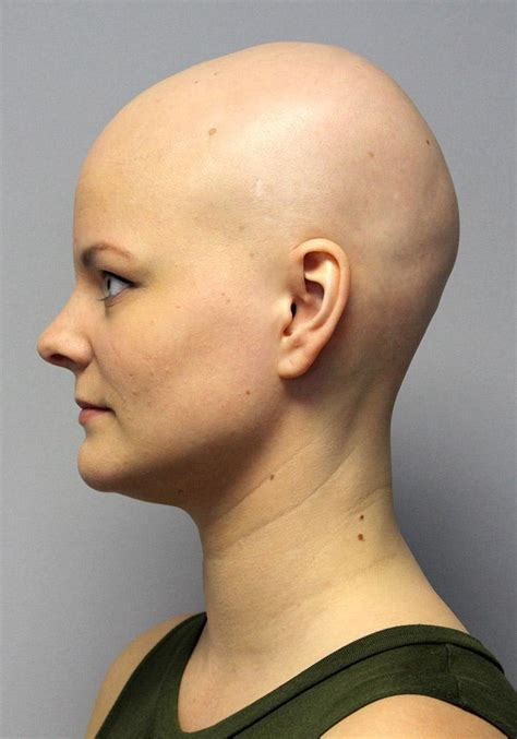 natural treatment for hair loss picture 10