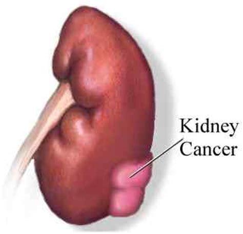stage 4 bladder cancer metastasis causing renal failure pr picture 10
