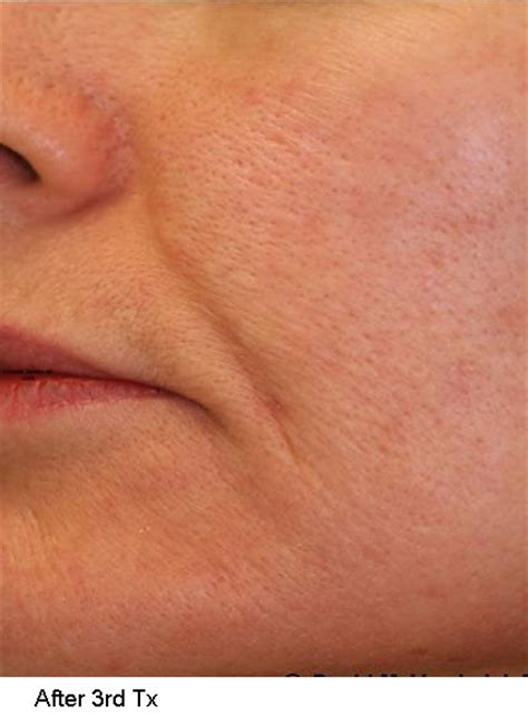 acne scar treatments in houston picture 17
