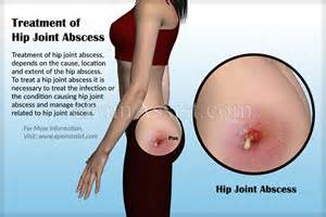 hip joint infection and cutaneous fistulas picture 6
