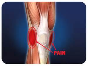 meniscus muscle picture 11
