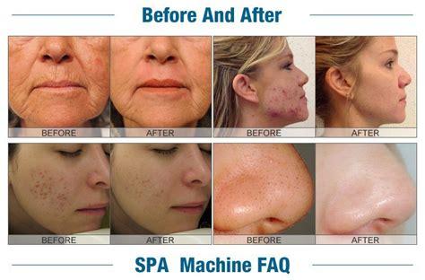 acne vs blackheads picture 7