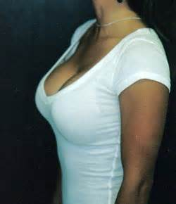 breast augmentation with high picture 1