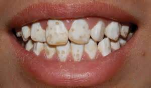 discolored teeth fluorosis picture 10