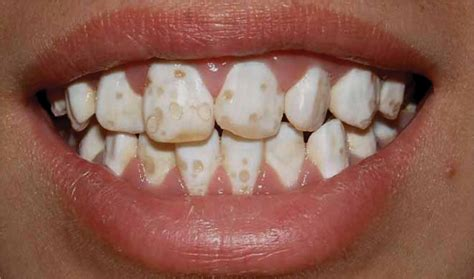 chalky teeth hereditary picture 18
