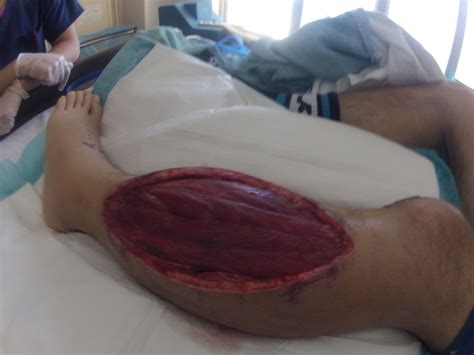 cut a muscle in my leg picture 6